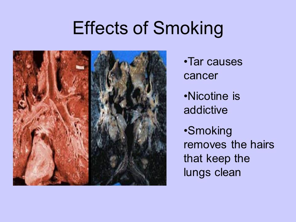 Effects of Smoking Tar causes cancer Nicotine is addictive Smoking removes the hairs that keep the lungs clean