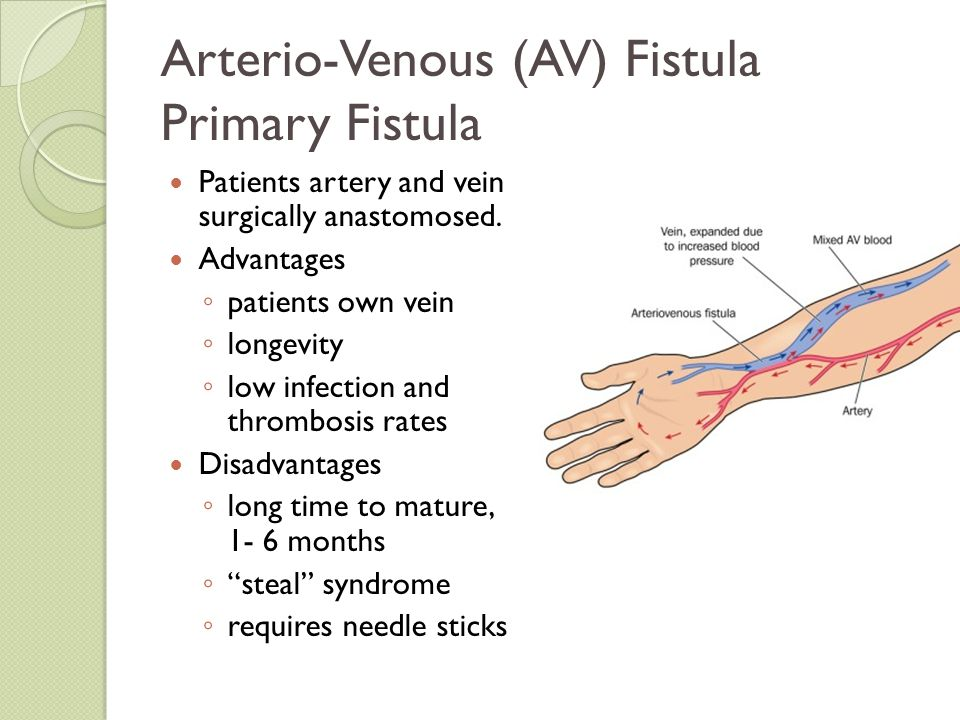 Arterio-Venous (AV) Fistula Primary Fistula Patients artery and vein surgically anastomosed. Advantages ◦ patients own vein ◦ longevity ◦ low infectio