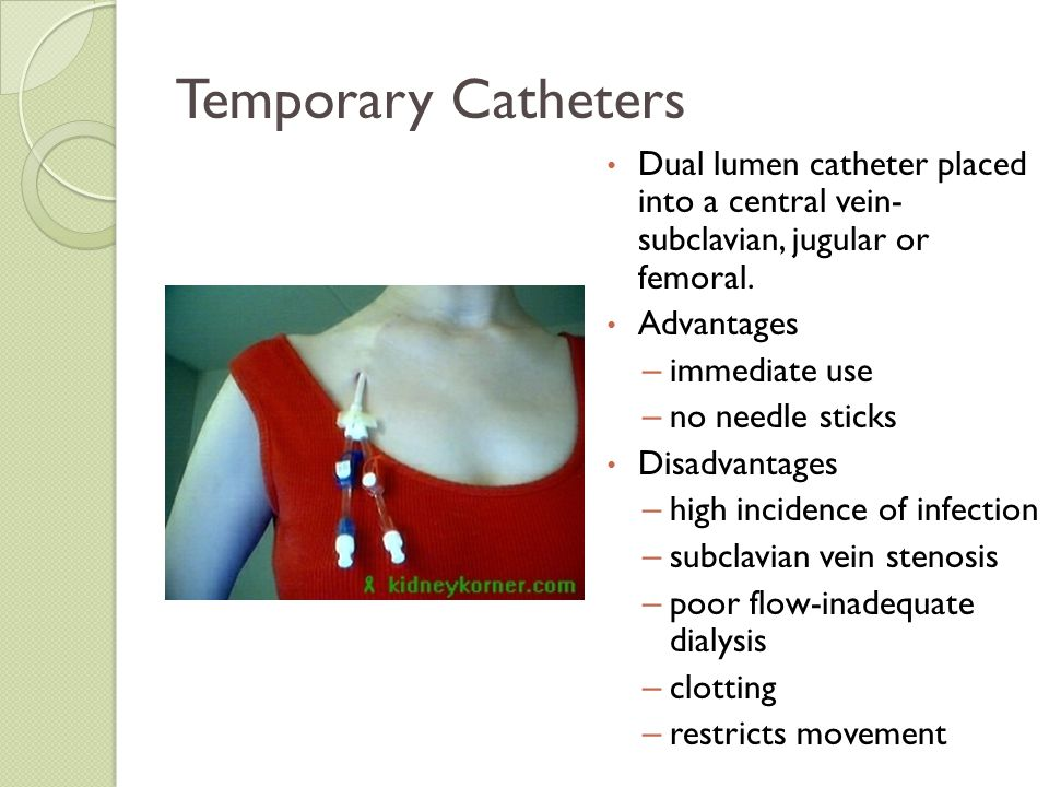 Temporary Catheters Dual lumen catheter placed into a central vein- subclavian, jugular or femoral. Advantages – immediate use – no needle sticks Disa