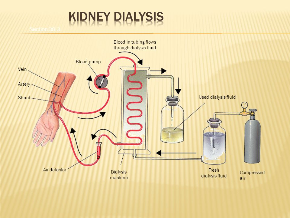 Vein Artery Shunt Air detector Dialysis machine Blood pump Blood in tubing flows through dialysis fluid Used dialysis fluid Compressed air Fresh dialysis fluid Section 38-3