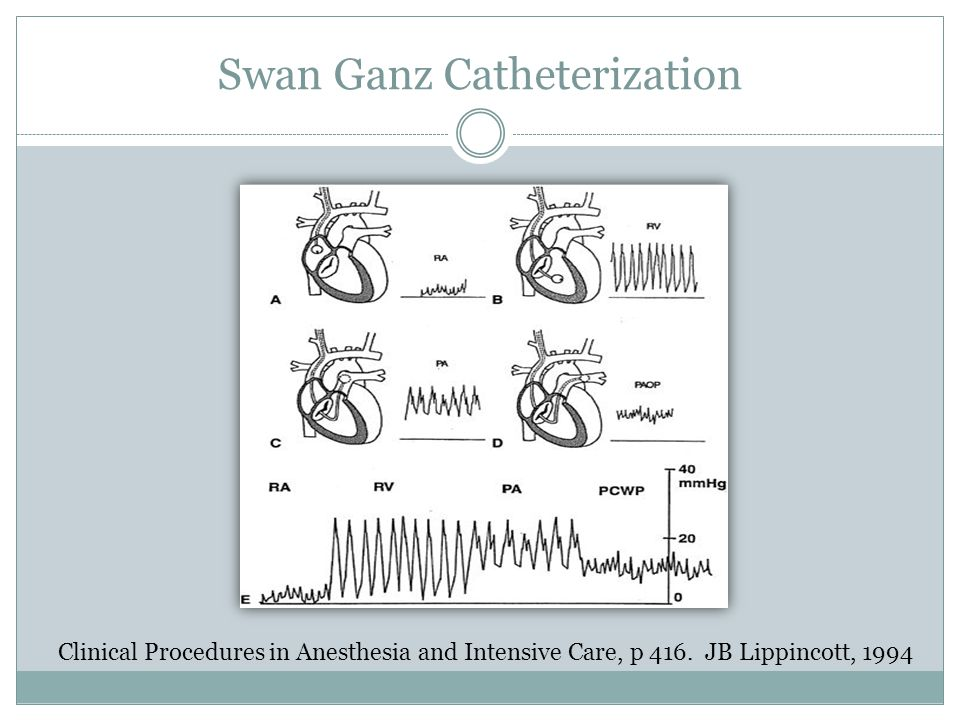 Swan Ganz Catheterization Clinical Procedures in Anesthesia and Intensive Care, p 416.