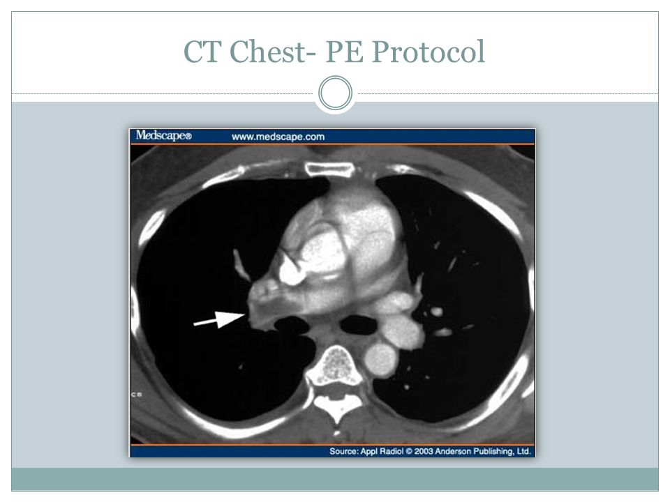 CT Chest- PE Protocol