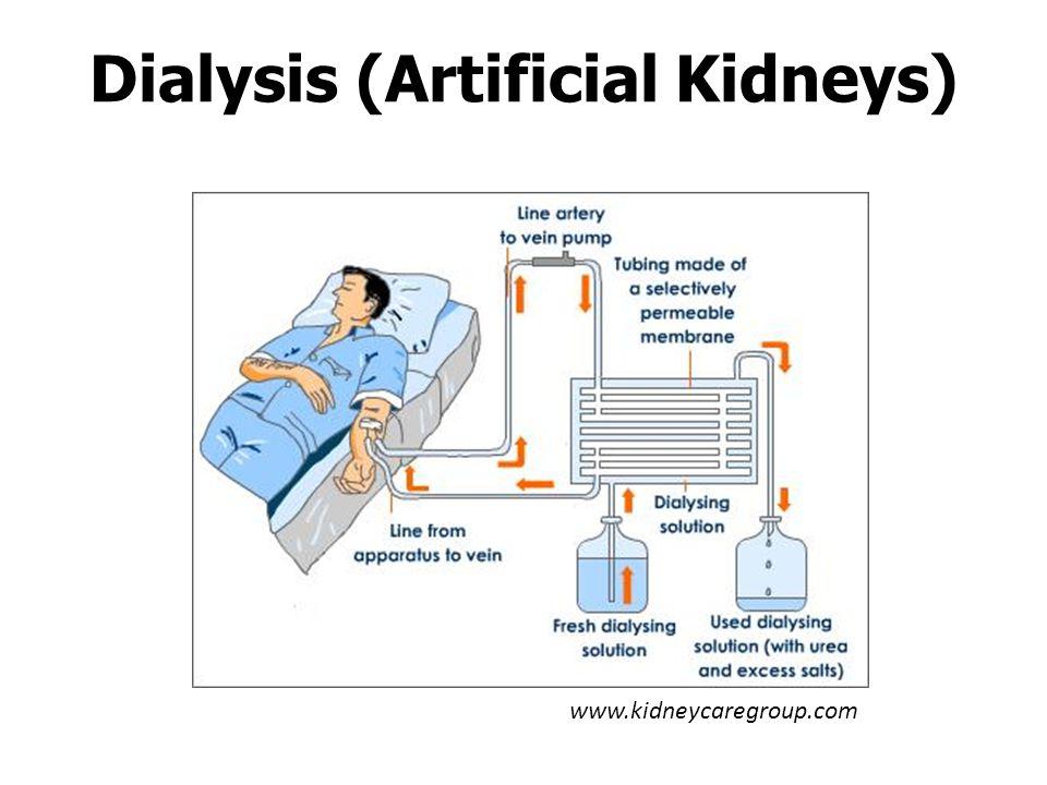Dialysis (Artificial Kidneys) www.kidneycaregroup.com
