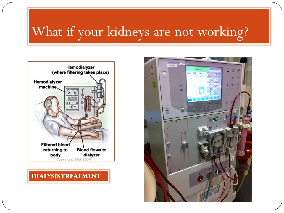 What if your kidneys are not working DIALYSIS TREATMENT