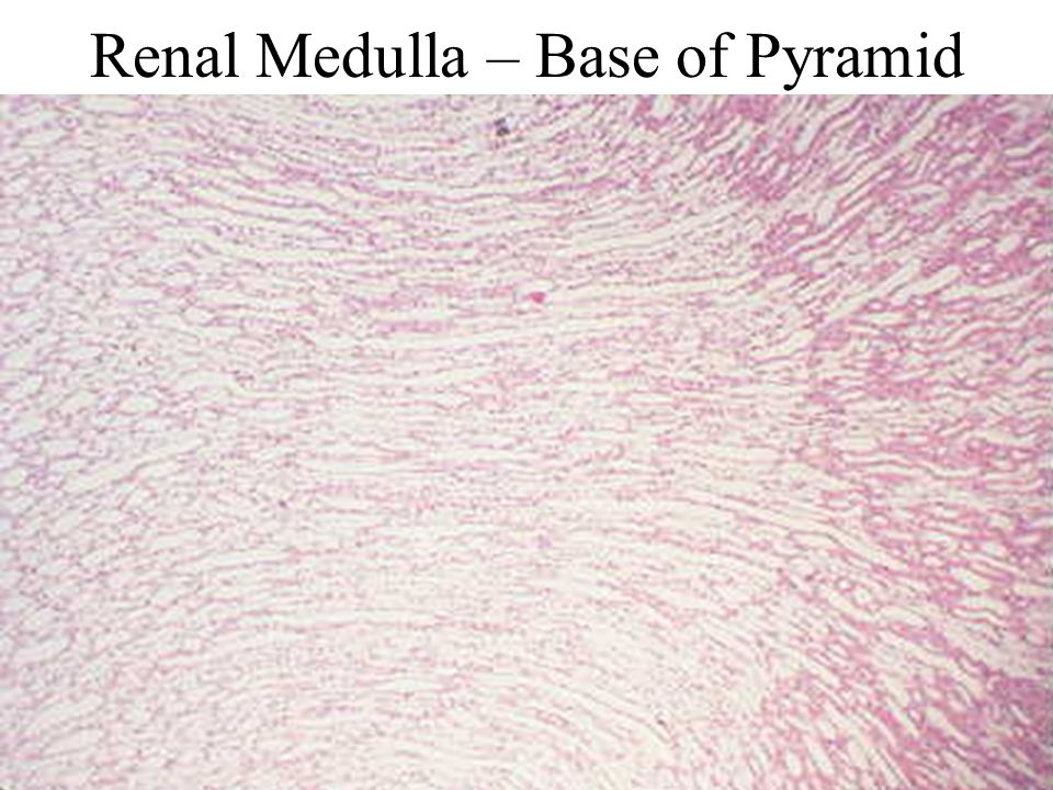 Renal Medulla – Base of Pyramid
