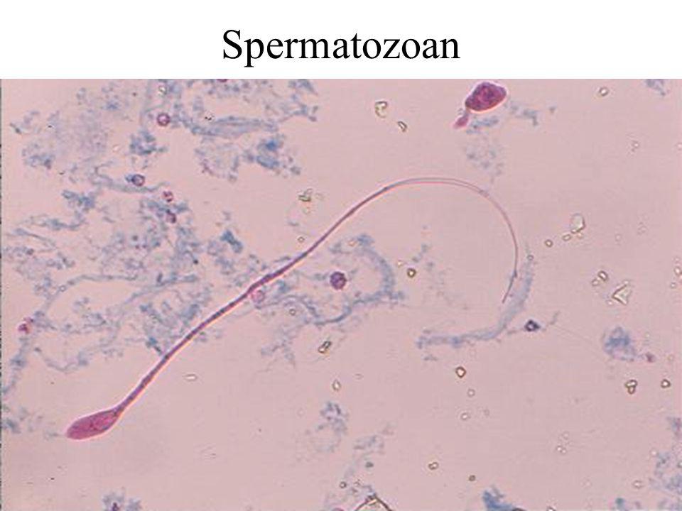 Spermatozoan