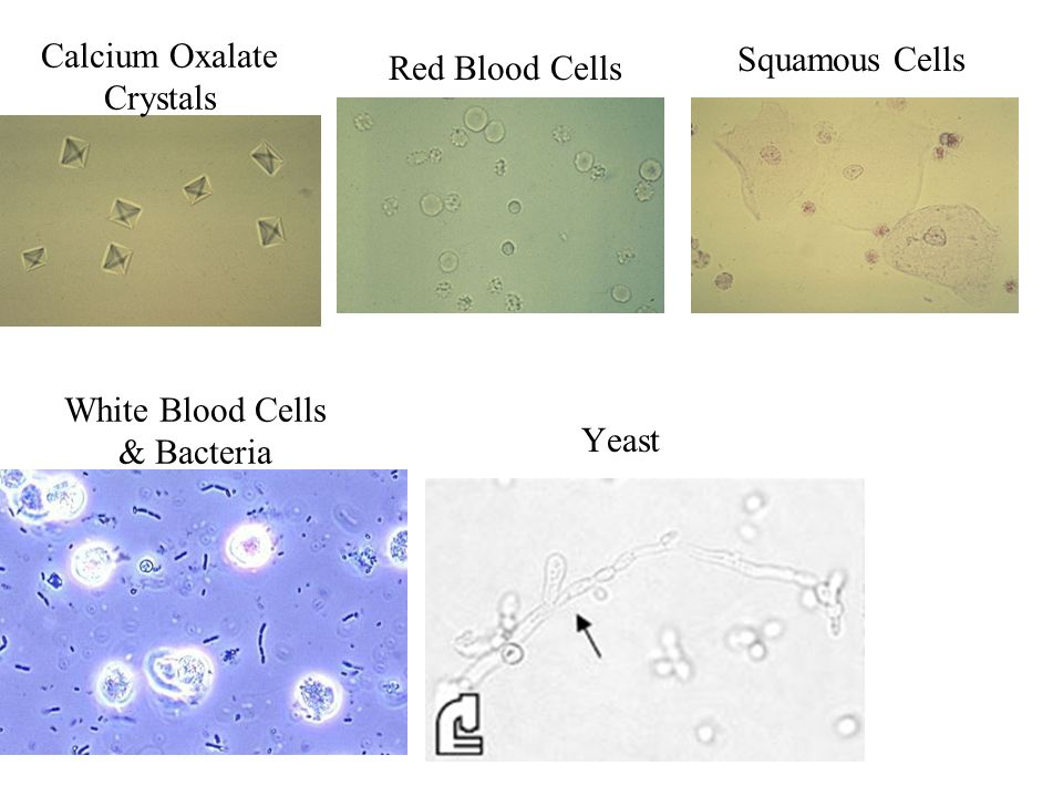 Calcium Oxalate Crystals Red Blood Cells Yeast White Blood Cells & Bacteria Squamous Cells