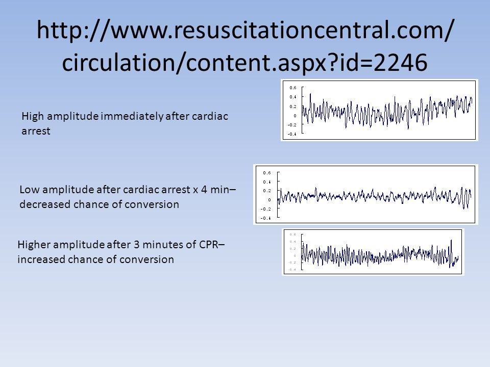 http://www.resuscitationcentral.com/ circulation/content.aspx?id=2246 Low amplitude after cardiac arrest x 4 min– decreased chance of conversion Higher amplitude after 3 minutes of CPR– increased chance of conversion High amplitude immediately after cardiac arrest