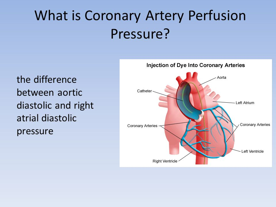 What is Coronary Artery Perfusion Pressure.