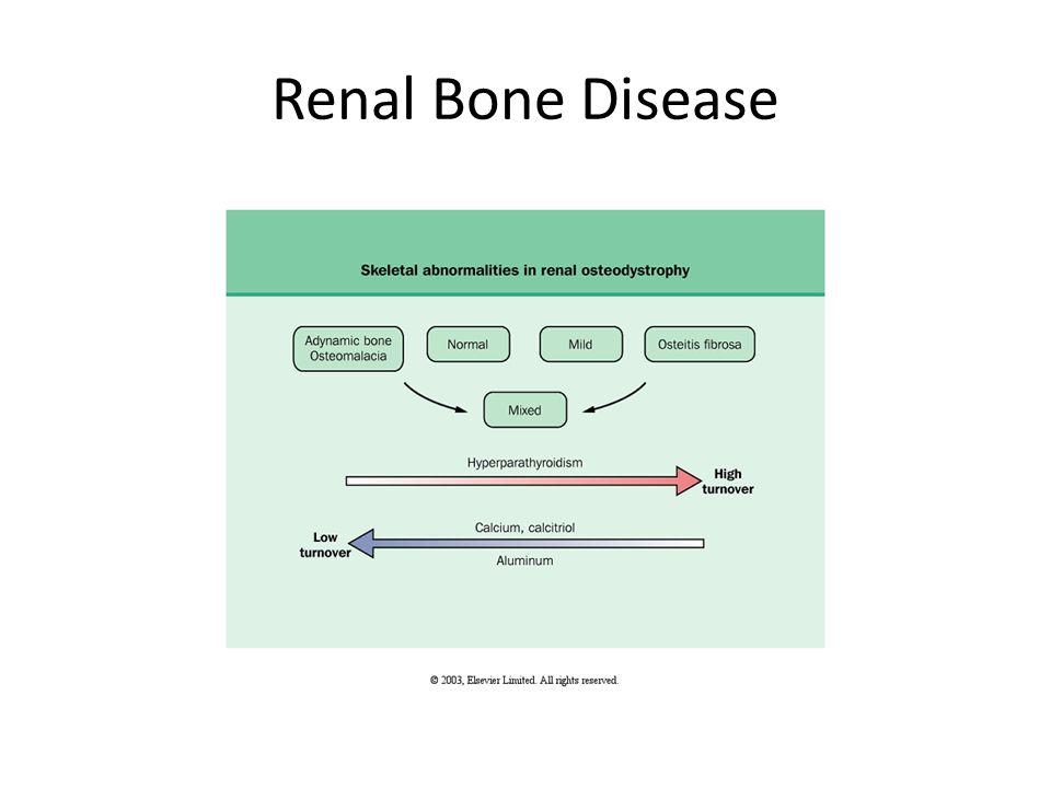 Renal Bone Disease