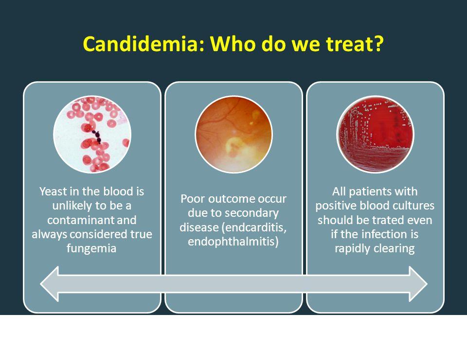 Candidemia: Who do we treat.
