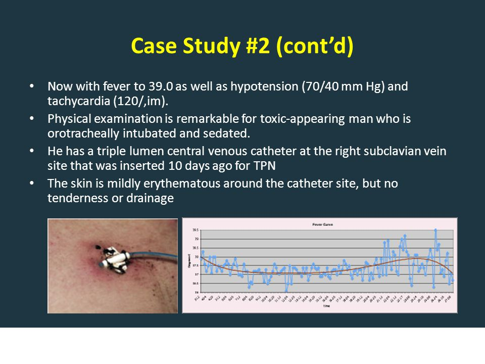Case Study #2 (cont'd) Now with fever to 39.0 as well as hypotension (70/40 mm Hg) and tachycardia (120/,im).