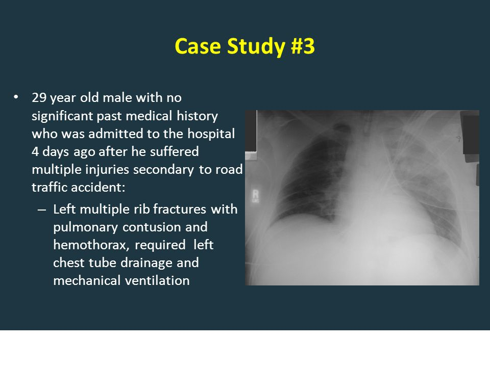 Case Study #3 29 year old male with no significant past medical history who was admitted to the hospital 4 days ago after he suffered multiple injuries secondary to road traffic accident: – Left multiple rib fractures with pulmonary contusion and hemothorax, required left chest tube drainage and mechanical ventilation