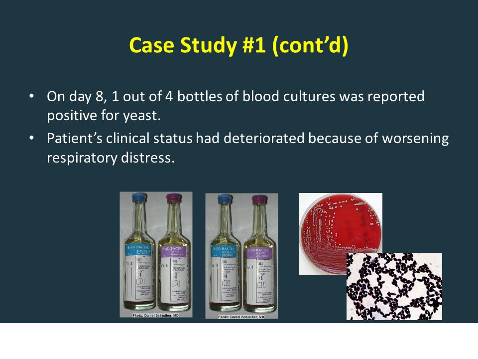 Case Study #1 (cont'd) On day 8, 1 out of 4 bottles of blood cultures was reported positive for yeast.