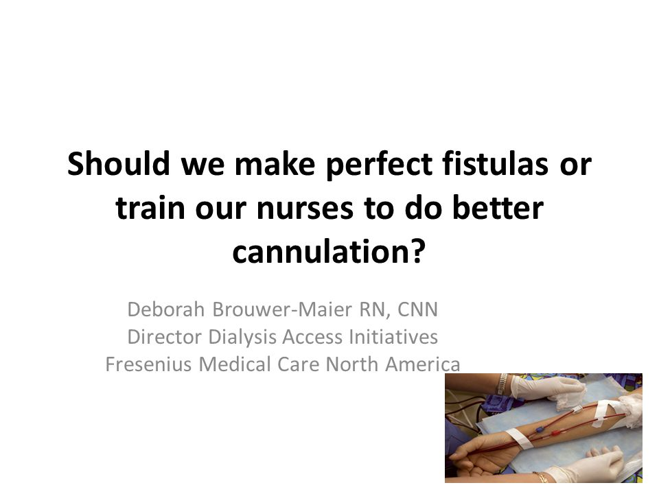 Should we make perfect fistulas or train our nurses to do better cannulation? Deborah Brouwer-Maier RN, CNN Director Dialysis Access Initiatives Frese