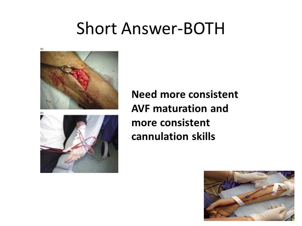 Potential Solutions? Virtual Simulator Virtual I.V.® Simulator or Virtual Phlebotomy® by Leardal