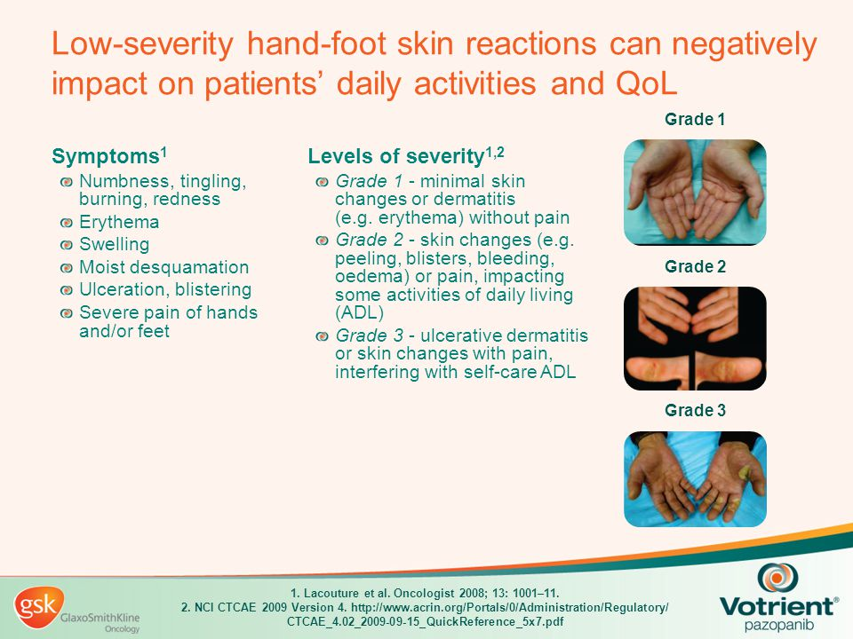 Low-severity hand-foot skin reactions can negatively impact on patients' daily activities and QoL Grade 2 Grade 3 Grade 1 1. Lacouture et al. Oncologi