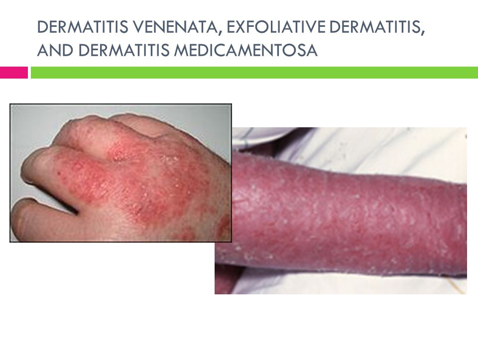 DERMATITIS VENENATA, EXFOLIATIVE DERMATITIS, AND DERMATITIS MEDICAMENTOSA