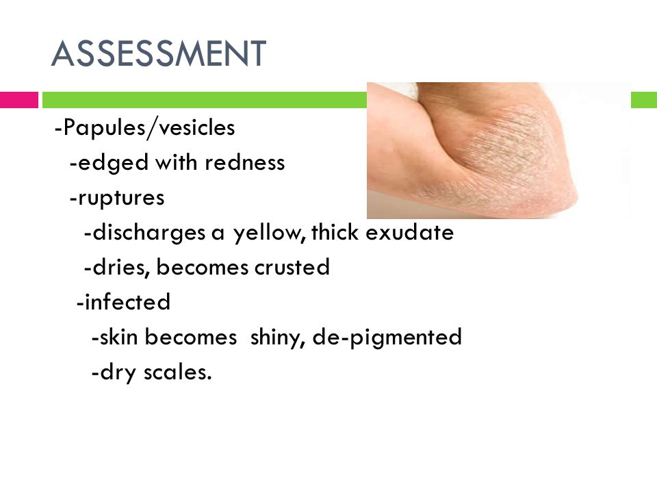 ASSESSMENT -Papules/vesicles -edged with redness -ruptures -discharges a yellow, thick exudate -dries, becomes crusted -infected -skin becomes shiny,