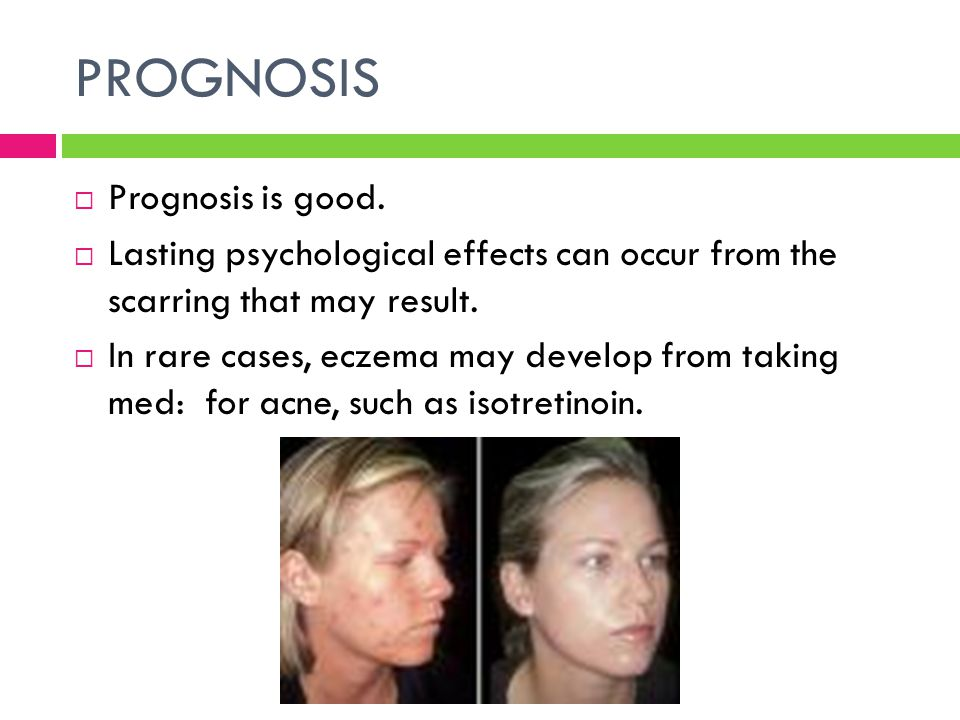 PROGNOSIS  Prognosis is good.  Lasting psychological effects can occur from the scarring that may result.  In rare cases, eczema may develop from t