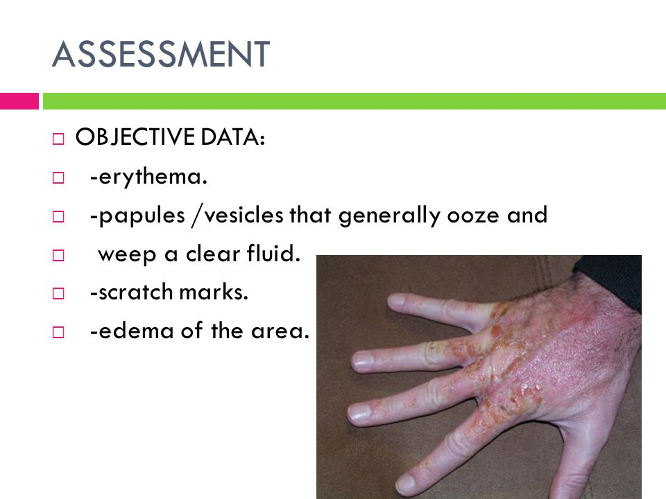 ASSESSMENT  OBJECTIVE DATA:  -erythema.  -papules /vesicles that generally ooze and  weep a clear fluid.  -scratch marks.  -edema of the area.
