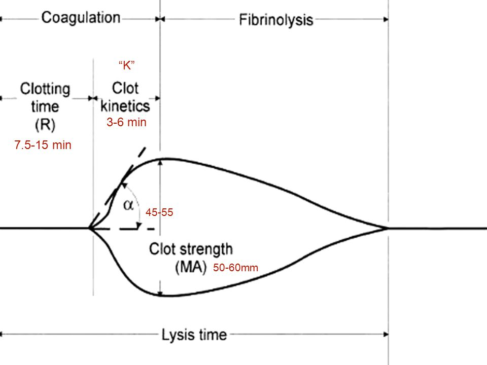 Primary Hyperfibrinolysis HypercoagulableNormal Hypocoagulable