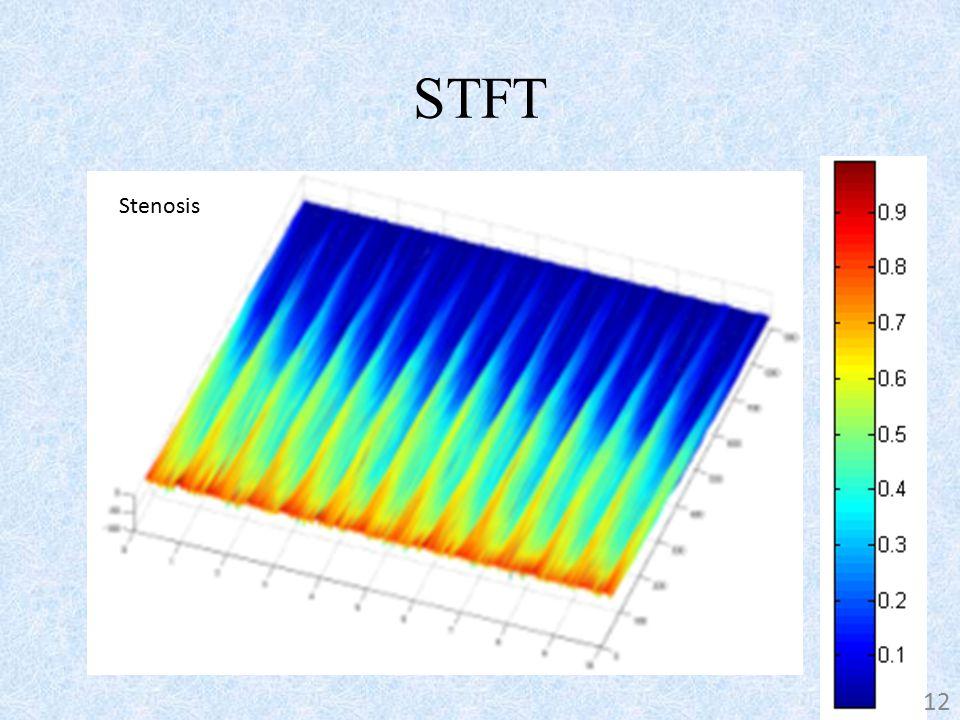 STFT Stenosis-free 12 Stenosis