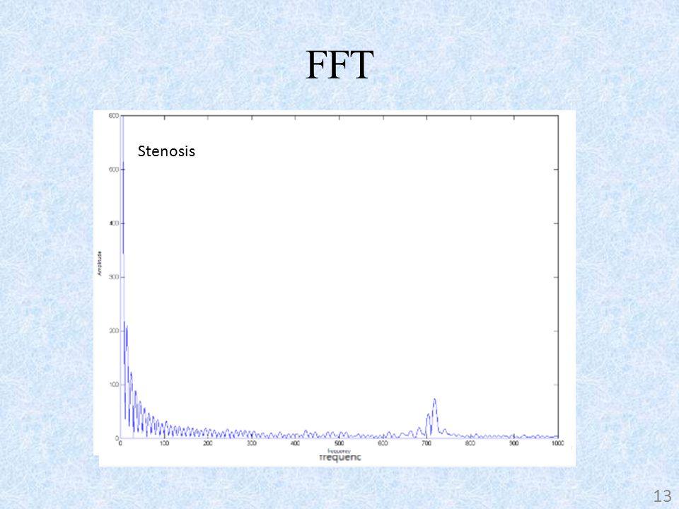 FFT Stenosis-free 13 Stenosis