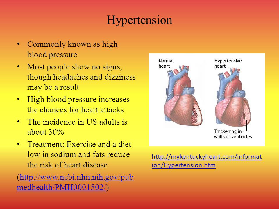 Hypertension Commonly known as high blood pressure Most people show no signs, though headaches and dizziness may be a result High blood pressure incre