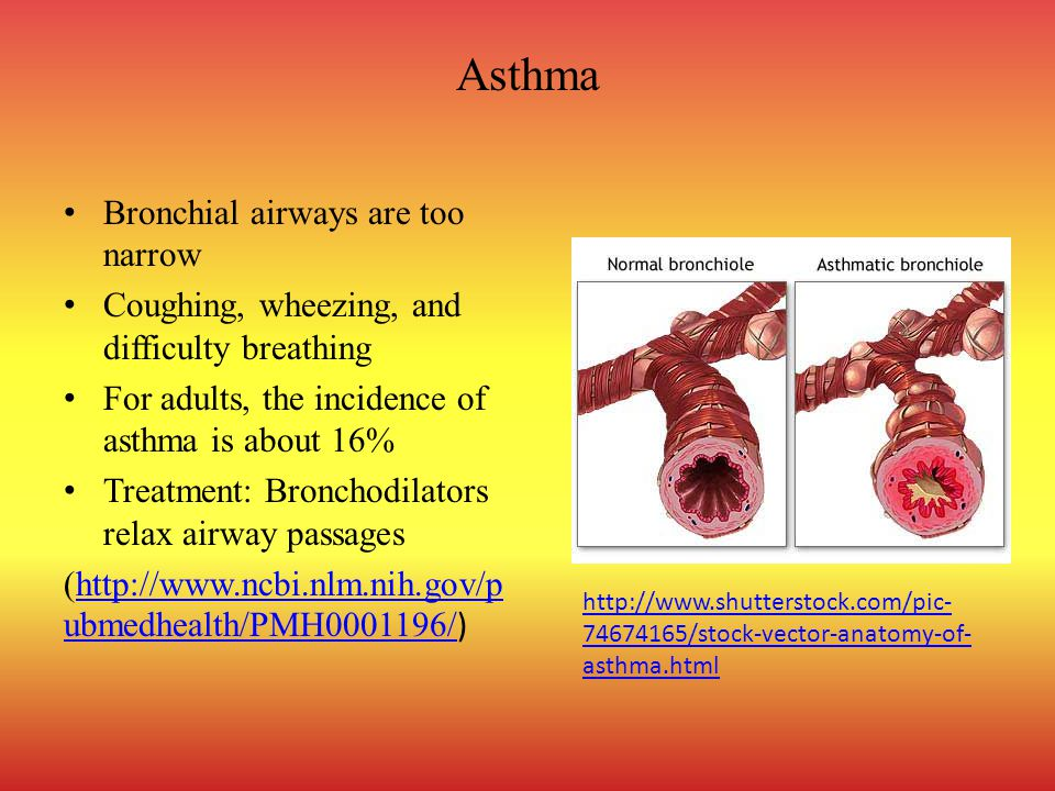 Asthma Bronchial airways are too narrow Coughing, wheezing, and difficulty breathing For adults, the incidence of asthma is about 16% Treatment: Bronchodilators relax airway passages (http://www.ncbi.nlm.nih.gov/p ubmedhealth/PMH0001196/ )http://www.ncbi.nlm.nih.gov/p ubmedhealth/PMH0001196/ http://www.shutterstock.com/pic- 74674165/stock-vector-anatomy-of- asthma.html