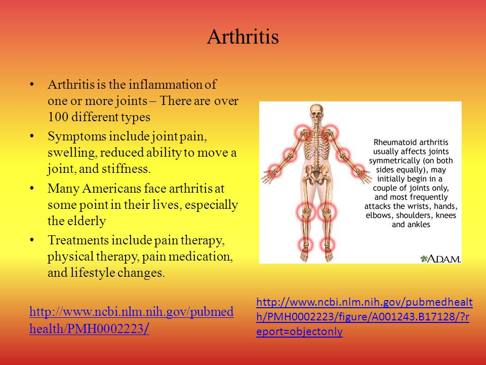 Arthritis Arthritis is the inflammation of one or more joints – There are over 100 different types Symptoms include joint pain, swelling, reduced abil