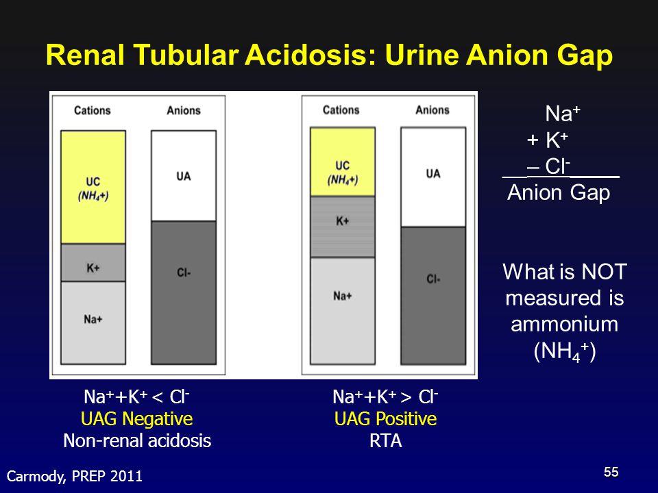 Renal Tubular Acidosis: Urine Anion Gap Na + + K + __– Cl - ____ Anion Gap What is NOT measured is ammonium (NH 4 + ) Carmody, PREP 2011 Na + +K + < C
