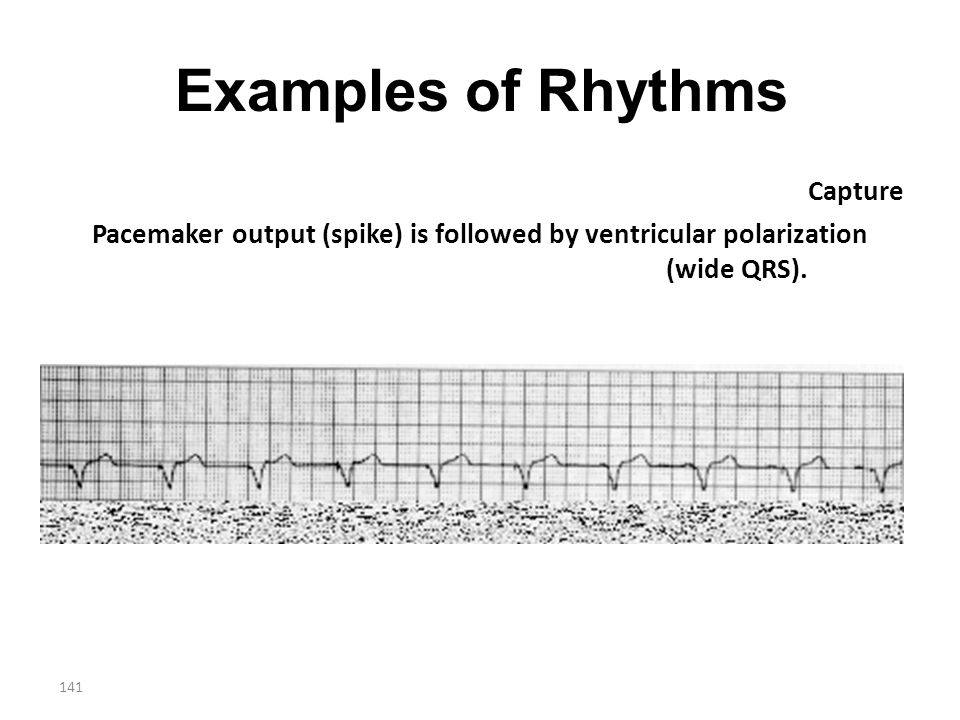 141 Examples of Rhythms Capture Pacemaker output (spike) is followed by ventricular polarization (wide QRS).