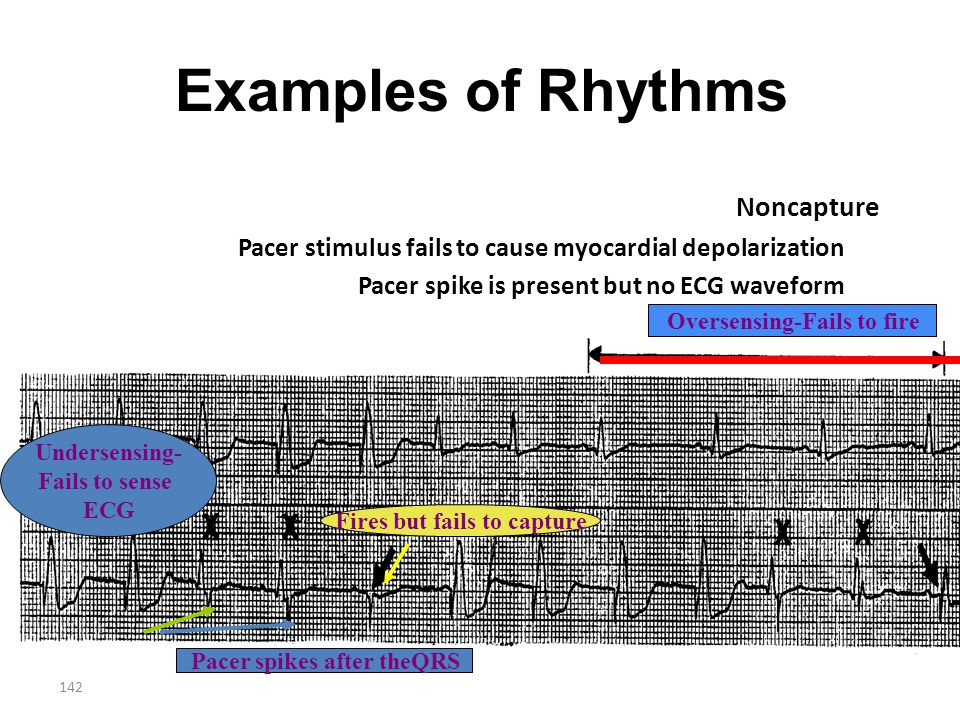 142 Examples of Rhythms Noncapture Pacer stimulus fails to cause myocardial depolarization Pacer spike is present but no ECG waveform Fires but fails