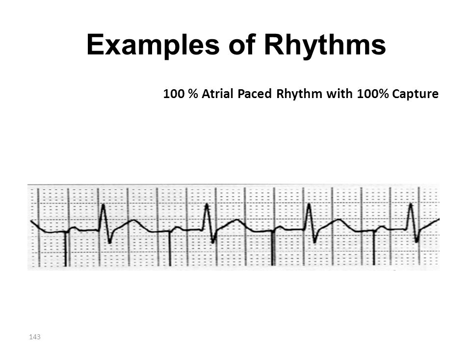 143 Examples of Rhythms 100 % Atrial Paced Rhythm with 100% Capture