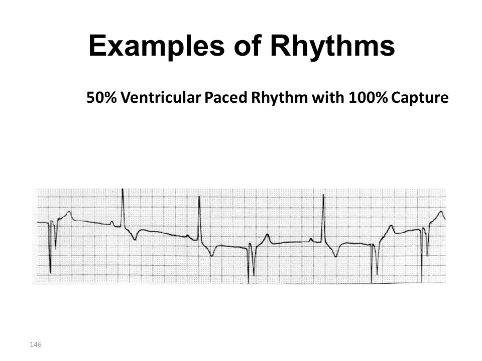 146 Examples of Rhythms 50% Ventricular Paced Rhythm with 100% Capture