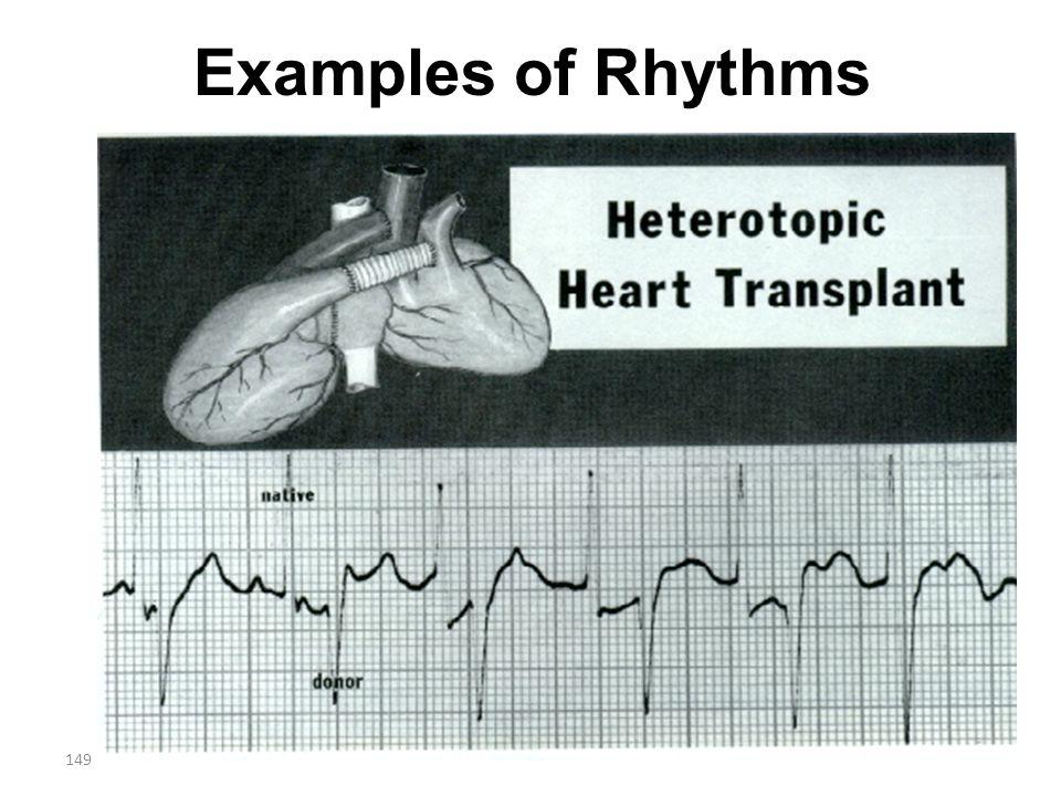 149 Examples of Rhythms