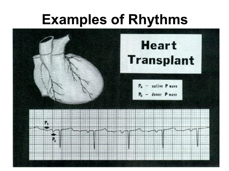 150 Examples of Rhythms