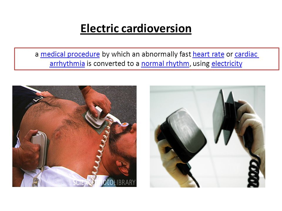 Electric cardioversion a medical procedure by which an abnormally fast heart rate or cardiac arrhythmia is converted to a normal rhythm, using electri