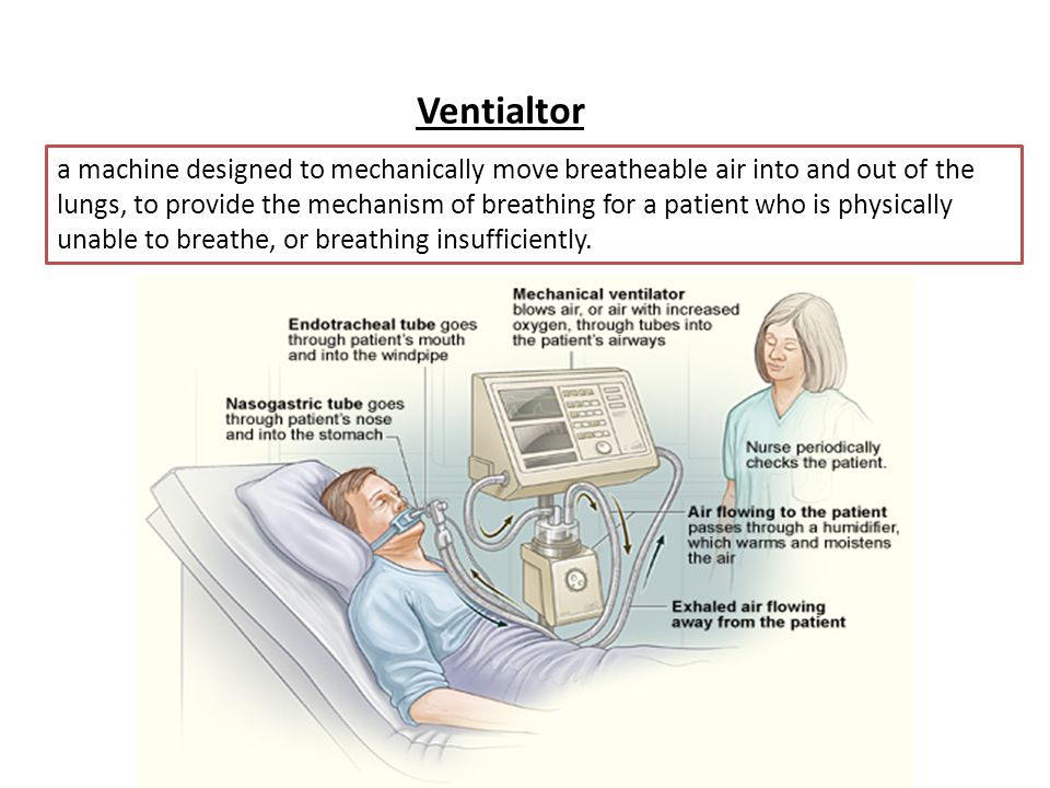 Ventialtor a machine designed to mechanically move breatheable air into and out of the lungs, to provide the mechanism of breathing for a patient who