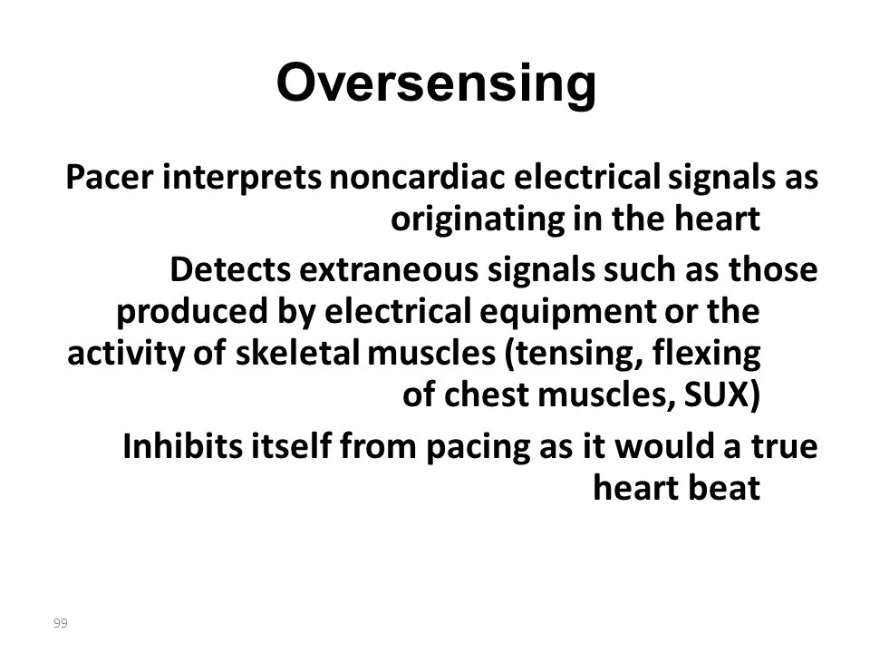 99 Oversensing Pacer interprets noncardiac electrical signals as originating in the heart Detects extraneous signals such as those produced by electri