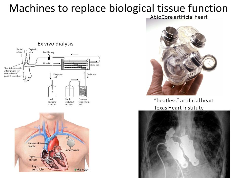 "Machines to replace biological tissue function Ex vivo dialysis AbioCore artificial heart ""beatless"" artificial heart Texas Heart Institute"