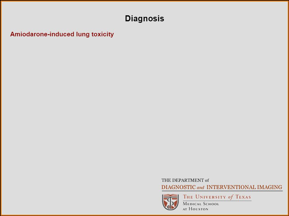 Amiodarone-induced lung toxicity Diagnosis