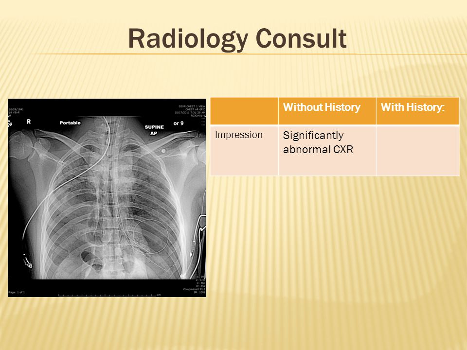 Radiology Consult Without HistoryWith History: Impression Significantly abnormal CXR