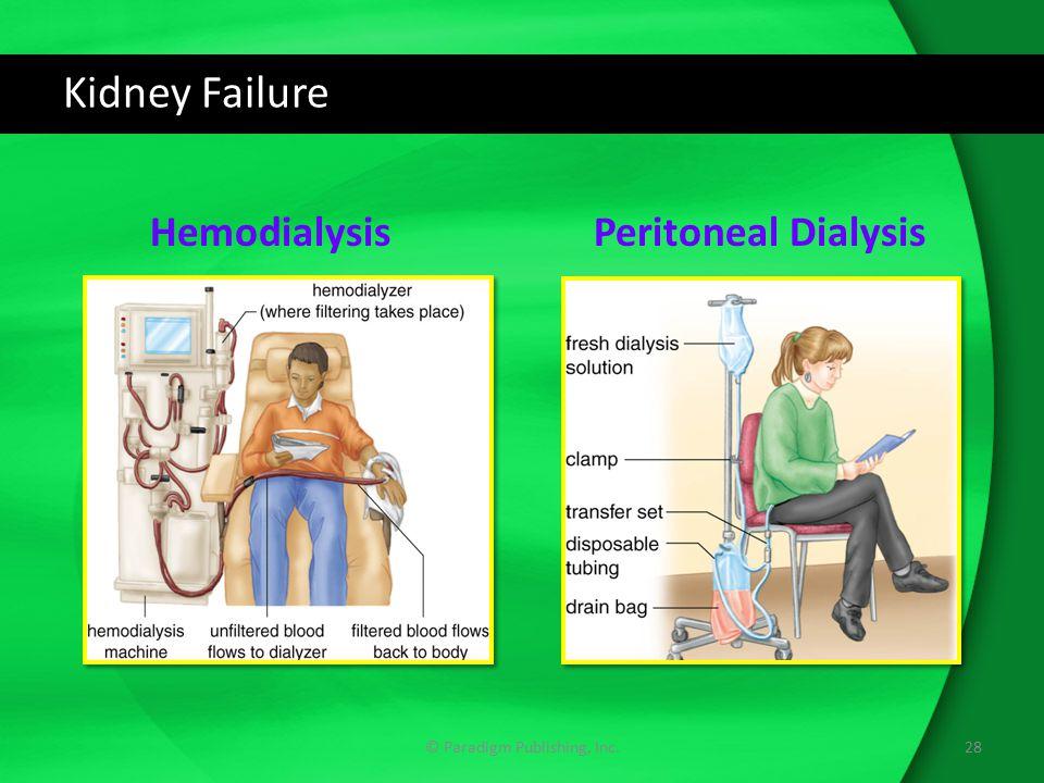 Kidney Failure © Paradigm Publishing, Inc.28 HemodialysisPeritoneal Dialysis