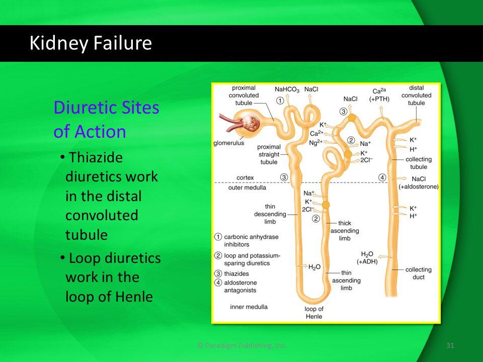 Kidney Failure © Paradigm Publishing, Inc.31 Diuretic Sites of Action Thiazide diuretics work in the distal convoluted tubule Loop diuretics work in t
