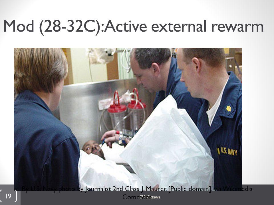 Mod (28-32C): Active external rewarm EM Ottawa 19 By U.S.