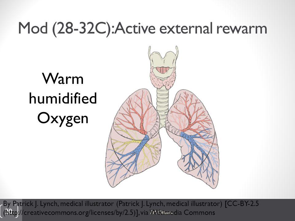 Mod (28-32C): Active external rewarm EM Ottawa 20 By Patrick J.