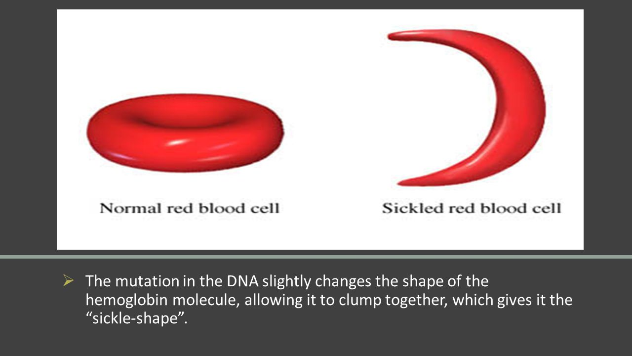 """ The mutation in the DNA slightly changes the shape of the hemoglobin molecule, allowing it to clump together, which gives it the """"sickle-shape""""."""