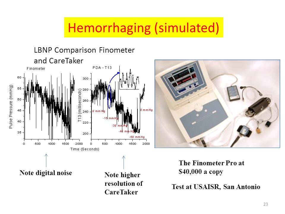 LBNP Comparison Finometer and CareTaker Note higher resolution of CareTaker The Finometer Pro at $40,000 a copy Test at USAISR, San Antonio Note digit